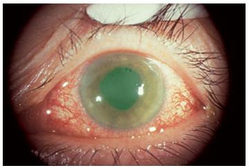 「glaucoma」の画像検索結果