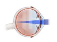 Myopia, Hyperopia, Astigmatism, Presbyopia